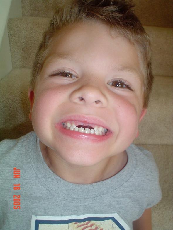 teeth! 002